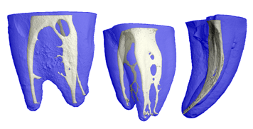 Root Canal Figure
