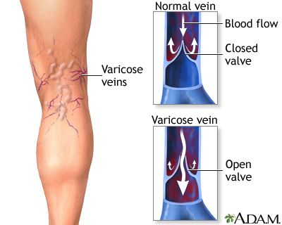 The struggle against Varicose veins
